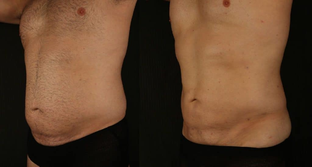 Liposculpture male abdomen results