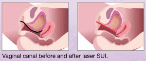 Vaginal-canal-before-and-after-laser