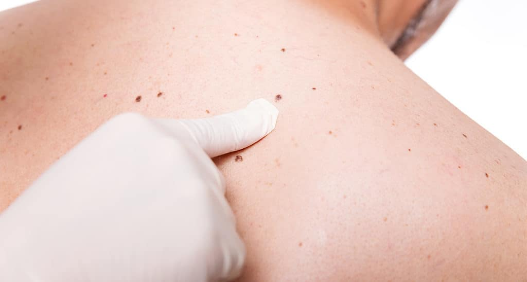 Skin Cancer doctor assessing patient