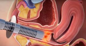 GynaeLase, MonaLisa Touch Gynaecology laser treatment