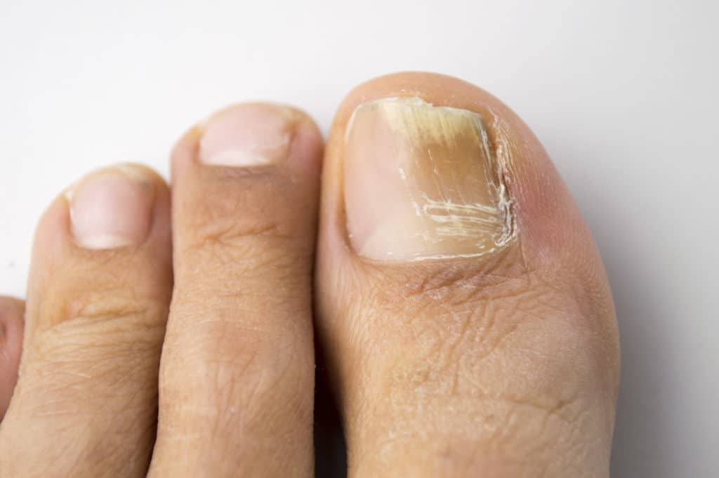 Sydney Fungal Nail Treatment With Laser - Specialist Clinics of ...