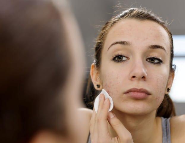 acne. (Small)