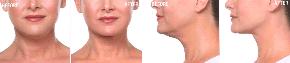 New Non-Surgical Double Chin Treatment Now At RCA!