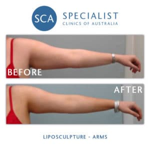 before after liposculpture arms sca