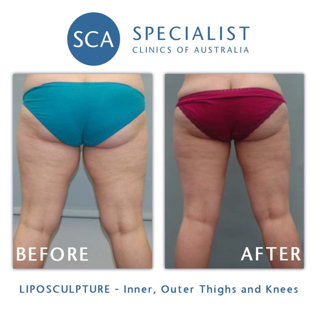 before after liposculpture thighs knees sca