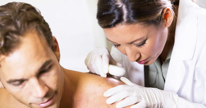 800x515 Skin cancer statistics in Australia