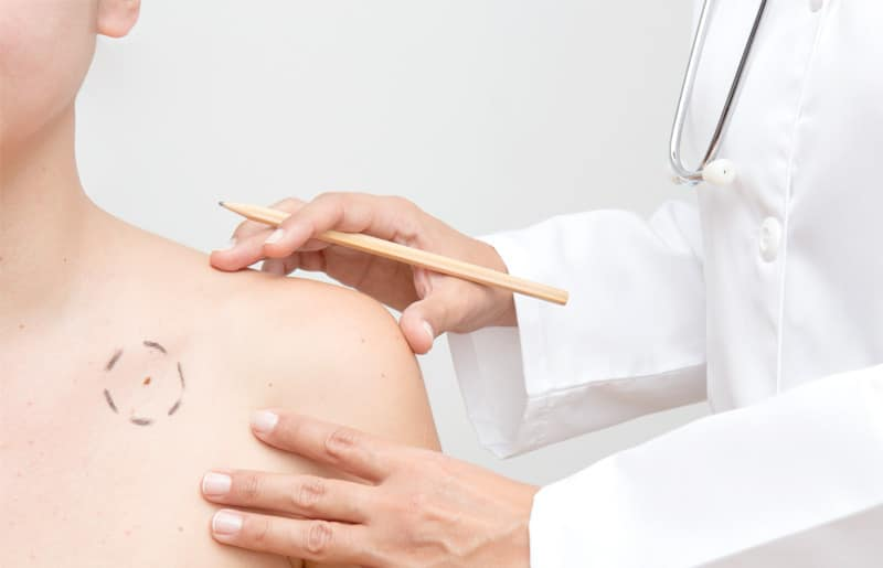 treatment for skin cancer